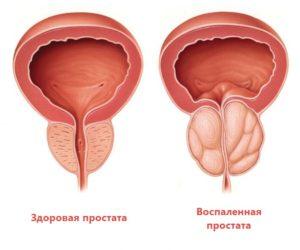 Лечение аденомы простаты иван-чаем